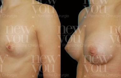 Brustvergrößerung A auf C