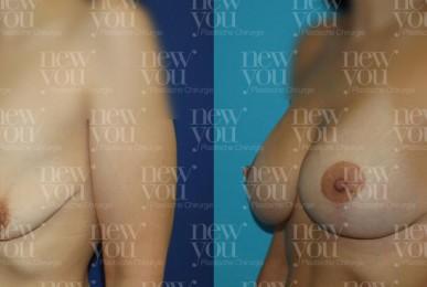 Brustvergrößerung Fotos