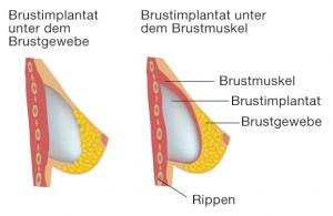 Die Platzierung der Implantate
