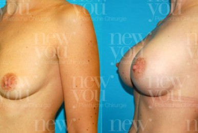 Vorher Nachher Bilder Brustvergrößerung