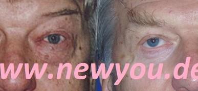 Augenlidkorrektur in Prag