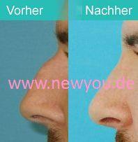 Nasenkorrektur in prag