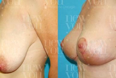 Brustverkleinerung Vorher Nachher