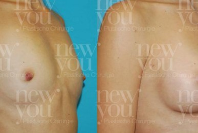 Brustimplantate Vorher Nachher