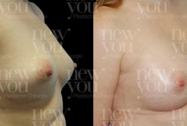 Brustvergrößerung Bilder Vorher Nachher