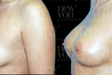 Brustvergrößerung Vorher Nachher Bilder Brustimplantate Fotos