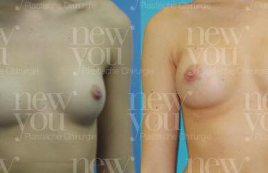 Brustvergrößerung im Ausland