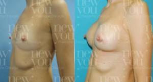 Brustvergrößerung in Tschechien