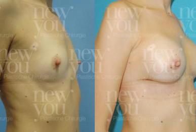 Brustvergrößerung in Tschechien Vorher Nachher