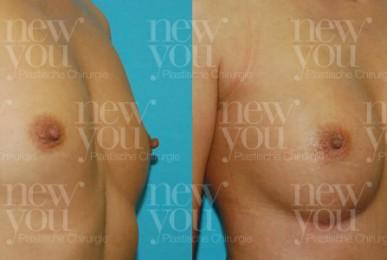 Brustvergrößerung von A auf B