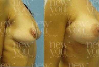 Brustvergrößerung von B auf D