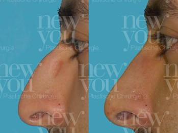 Nasenkorrektur im Ausland