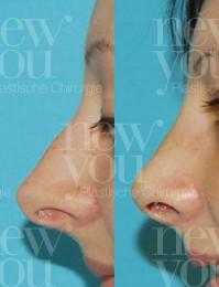 Nasenkorrektur im Ausland Vorher Nachher