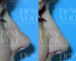 Nasenoperation Vorher Nachher Tschechien