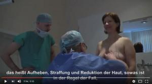Bruststraffung Video Prag