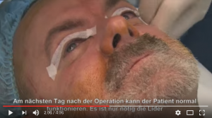 Lidstraffung Prag Tschechien