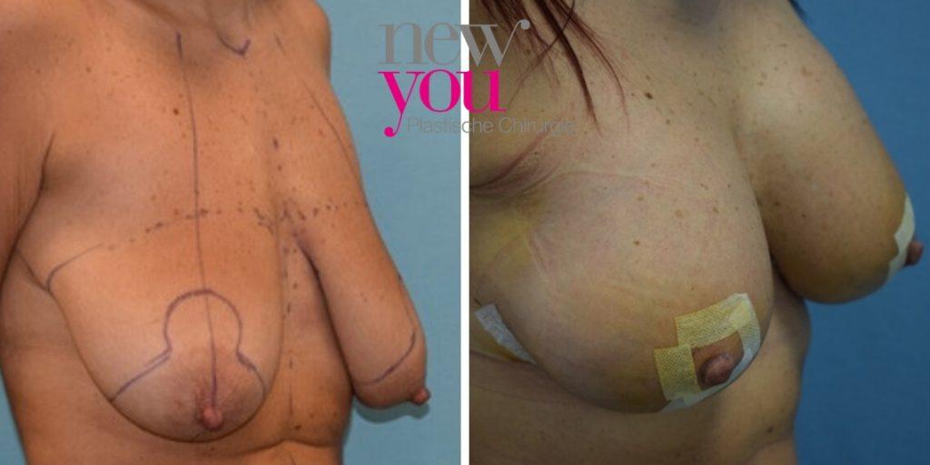 Bruststraffung mit Implantaten - Vorher Nachher - Prag, Tschechien